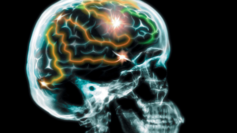 Epilepsy & Seizures Causes