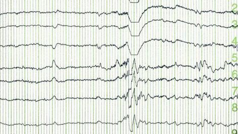Epilepsy & Seizures Types