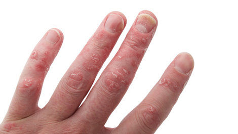 dermatitis on finger #11
