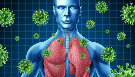 Viral Lung Infections